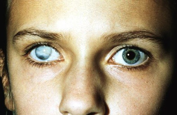 Нормальный глаз и глаз с бельмом