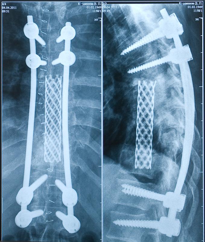 Позвоничник после спондилодеза на рентгеновском снимке