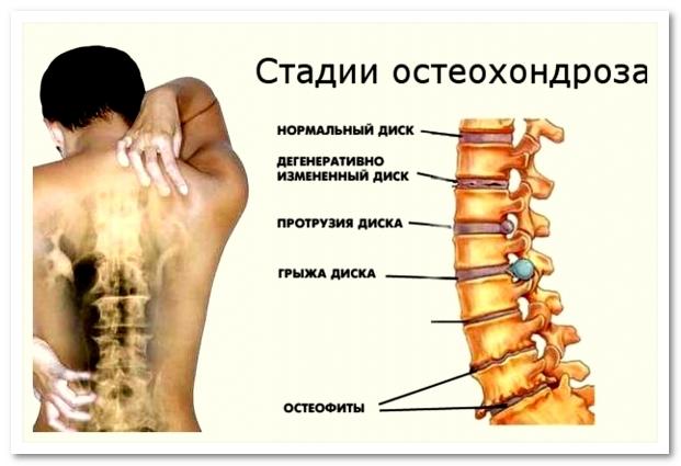 Гимнастика от остеохондроза позвоночника