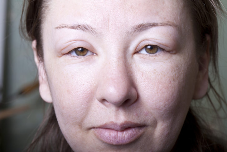 Женское лицо с отёками