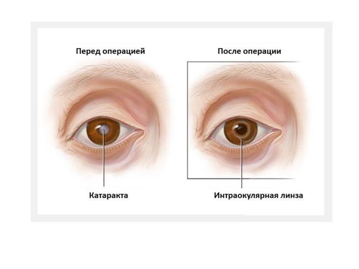 Вид зрачка до и после имплантации ИОЛ