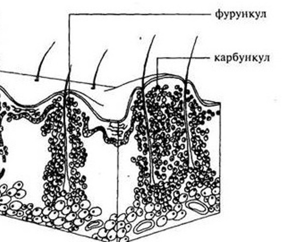 Схематическое изображение фурукнкула и карбункула