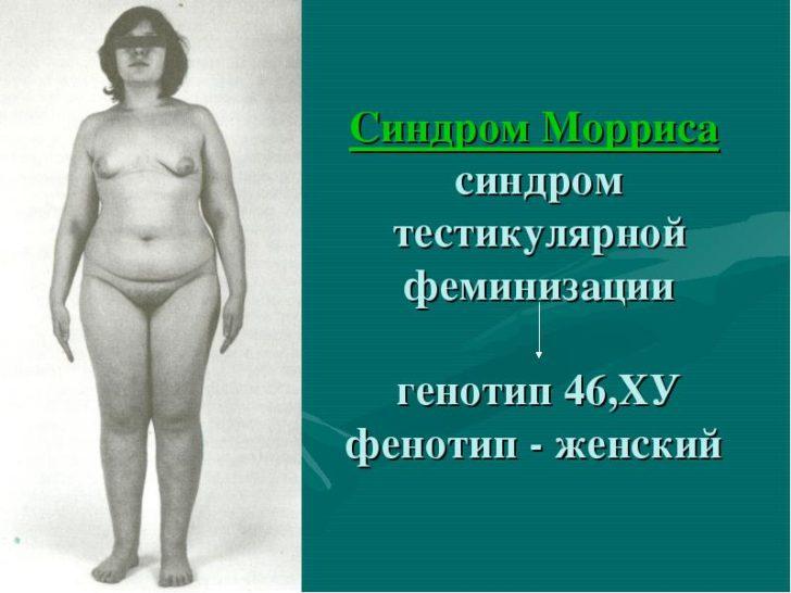 Синдром Морриса