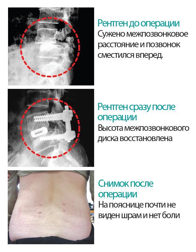 Спондилодез: рентгеновские снимки до операции, сразу после неё и фотография поясницы пациента после хирургического вмешательства