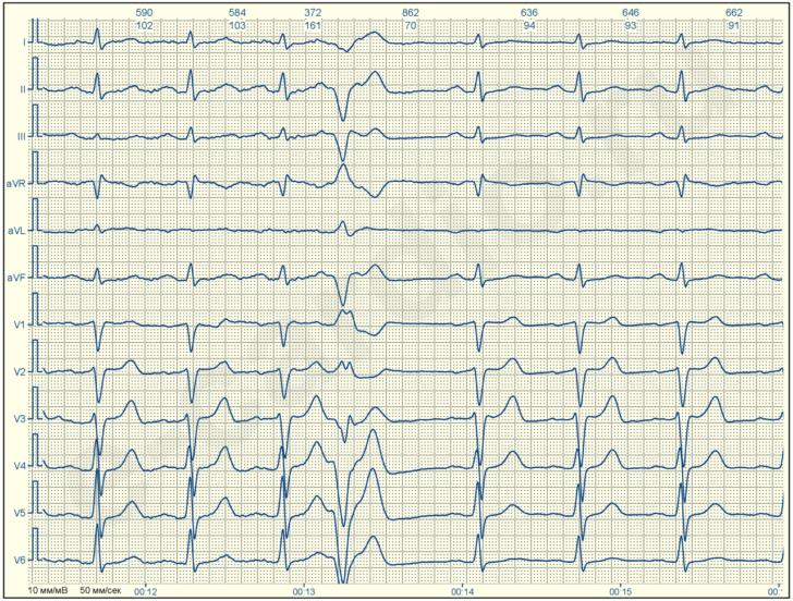 ЭКГ-картина желудочковой экстрасистолии