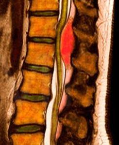 Эпидуральный абсцесс
