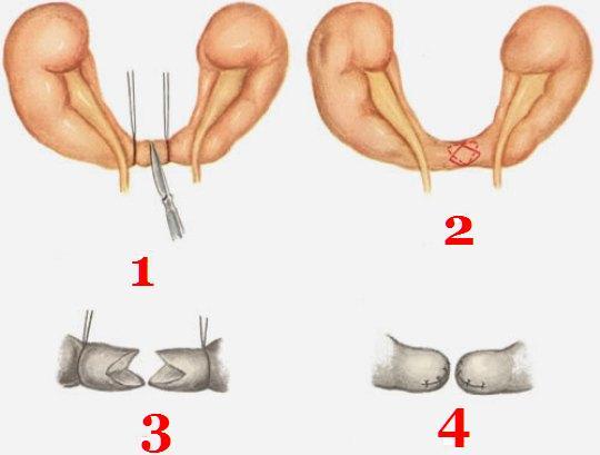 Этапы истмотомии (схема)