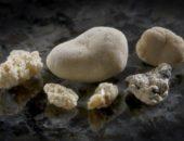 Фосфатные камни в почках