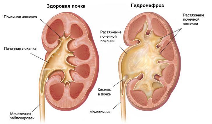 Здоровая почка и почка с гидронефрозом