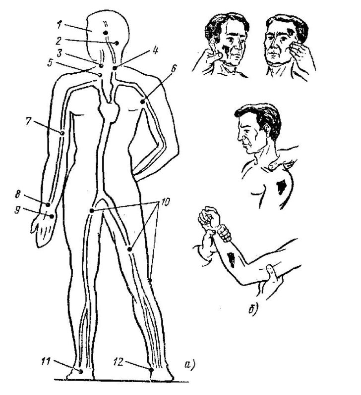 Места пальцевого прижатия артерий