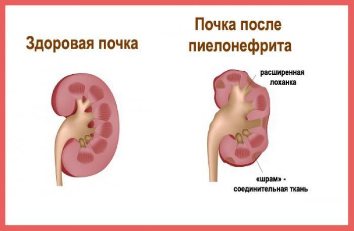 Осложнения нефролитиаза