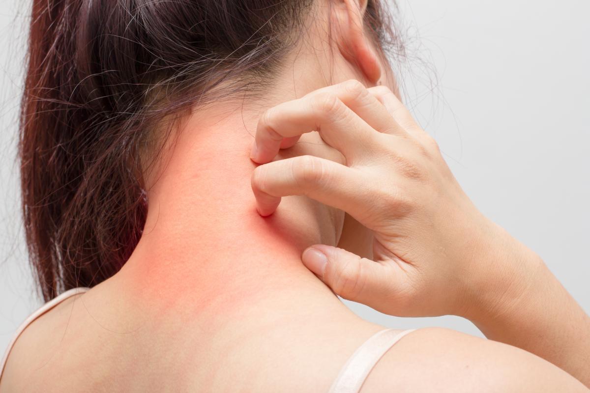 Потница: что представляет собой заболевание и как его лечить