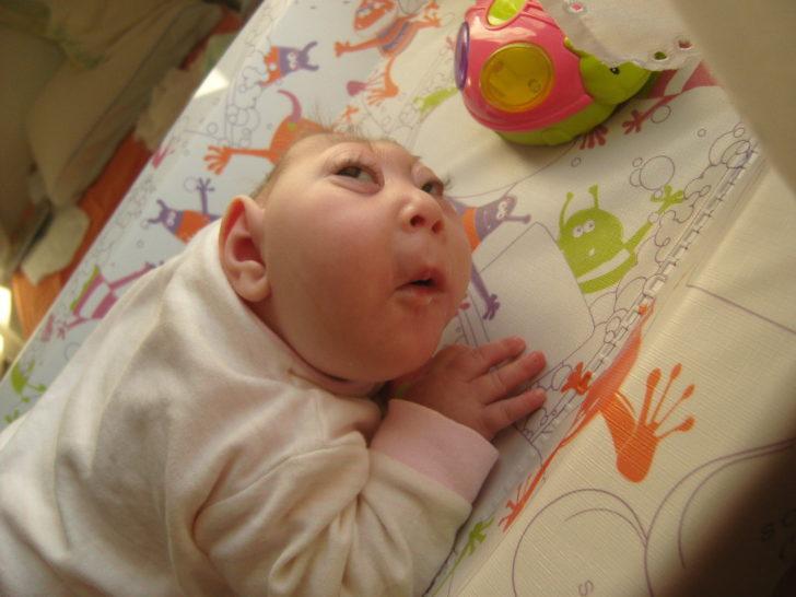 Ребёнок с анэнцефалией