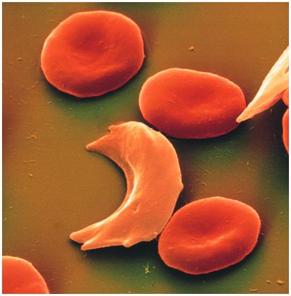 Серповидные эритроциты