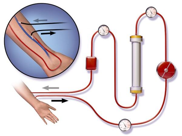 Схема проведения гемодиализа