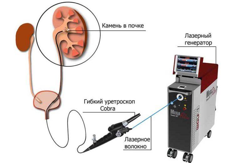 Схема проведения контактной литотрипсии