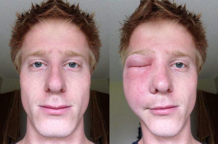Отёк щеки и глаза после укуса шершня