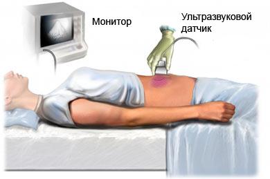 Выявление почечной недостаточности с помощью ультразвуковой допплерографии