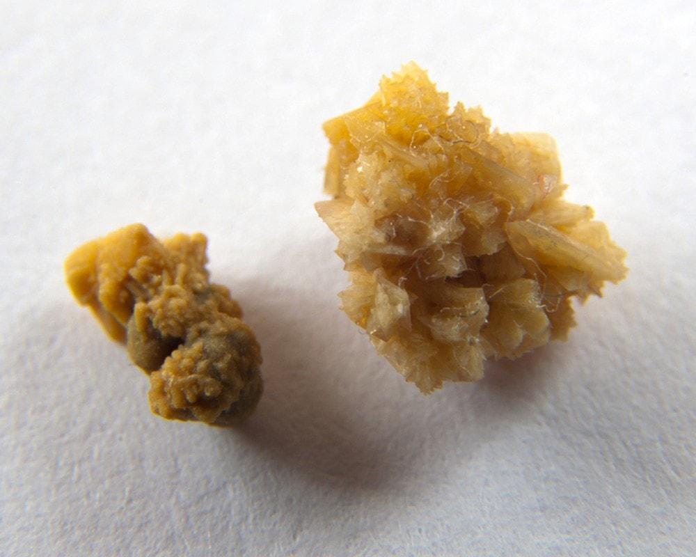 Болезни мочевыделительной системы: почему возникают уратные камни в почках и как от них избавиться