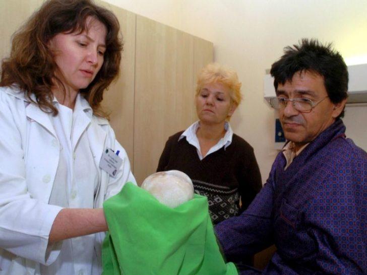 Врач отдаёт пациенту камень из почки