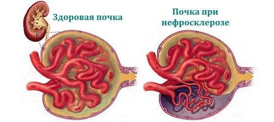 Здоровая почка и почка при нефросклерозе