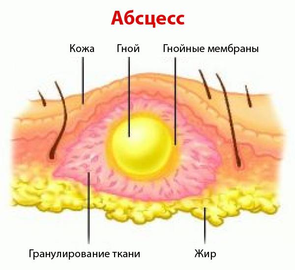 Абсцесс (схема)