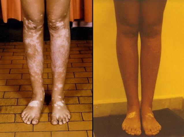 До и после операции по пересадке меланоцитов