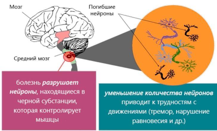 Механизм развития паркинсонизма