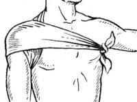 Косыночная повязка на плечо