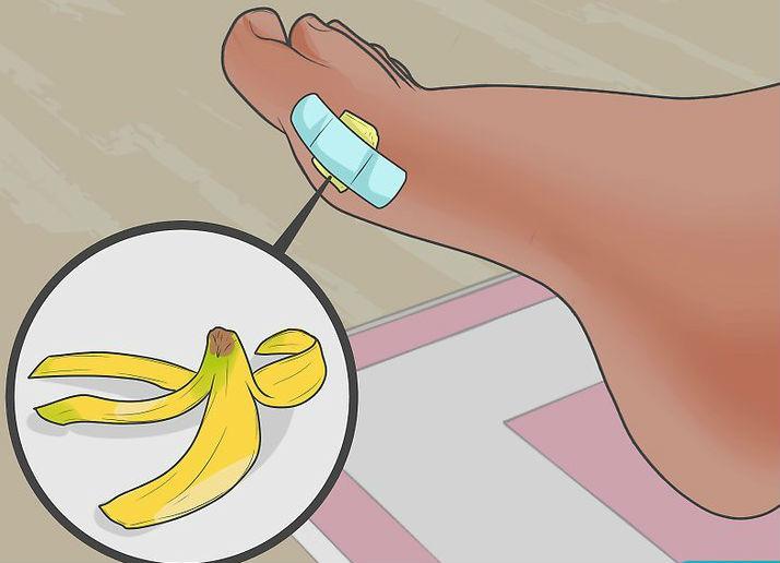 Кожура банана, приклеенная пластырем к ноге