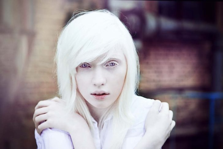 Девушка с альбинизмом