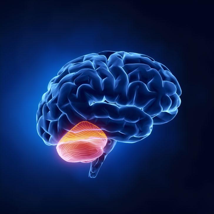 Мозжечковая атаксия
