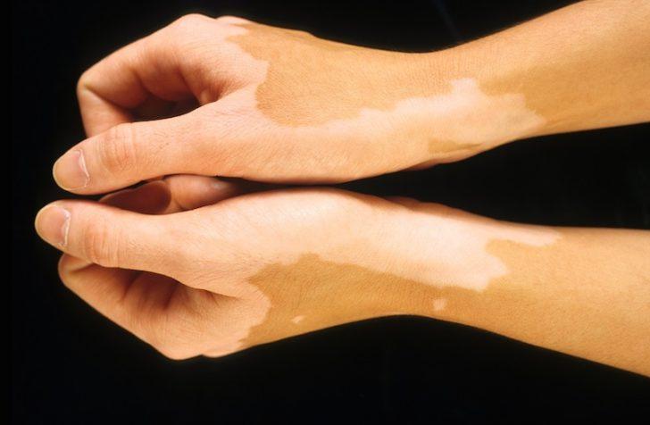 Гипопигментация кожи