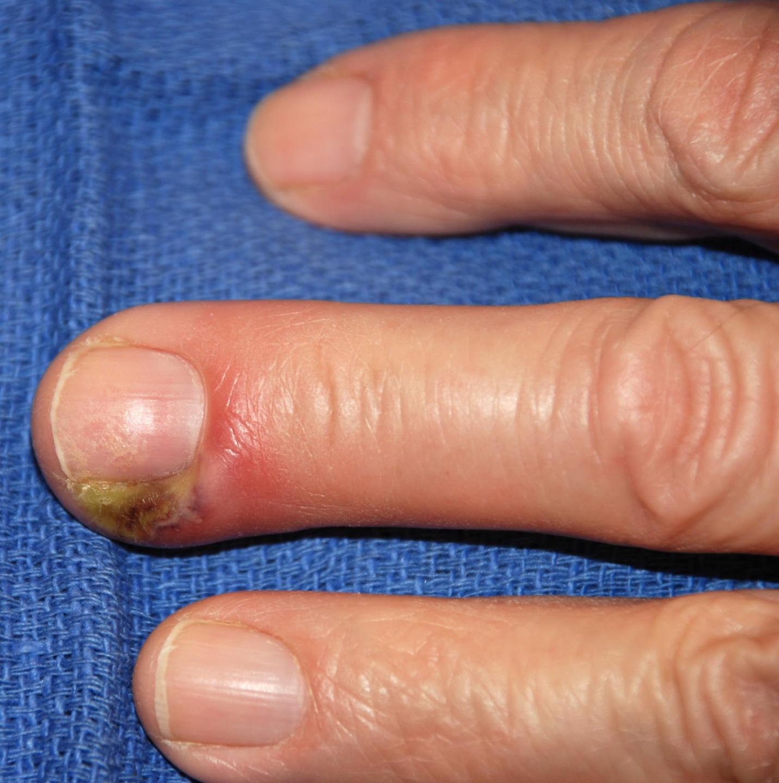 Панариций пальца в картинках