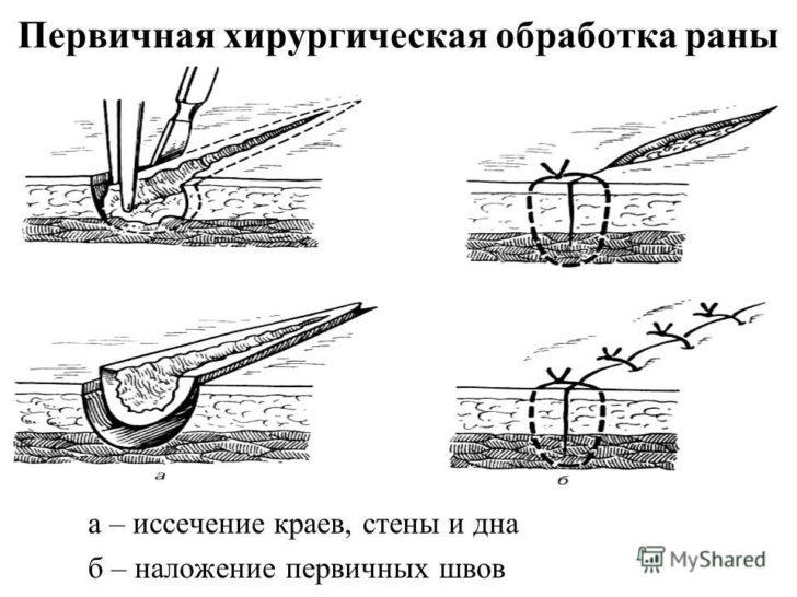 ПХО раны (схема)
