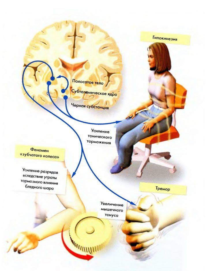 Симптомы паркинсонизма: схема