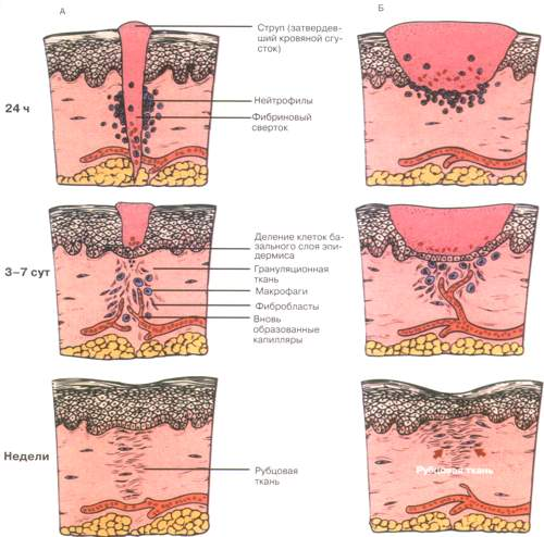 Схема образования рубца