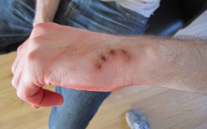 Укушенная рана