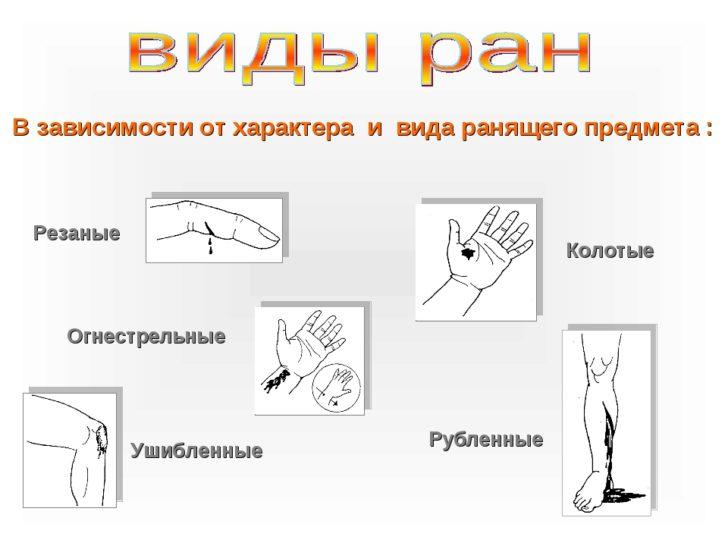 Виды ран (схема)
