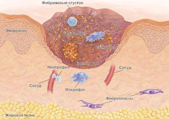 Воспаление в коже (схема)