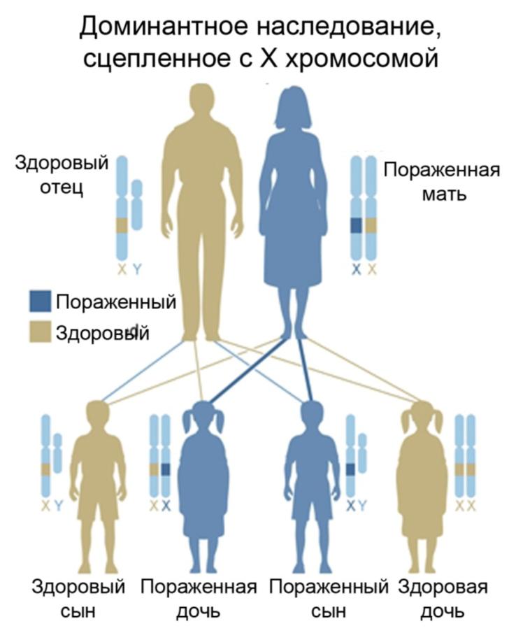 Х-сцепленный доминантный тип наследования (схема)