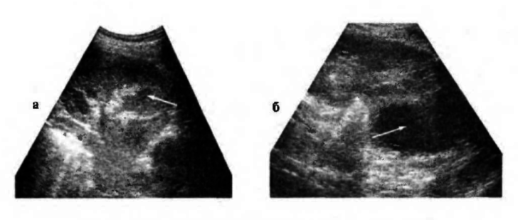 Карбункул почки на ультразвуковой эхограмме