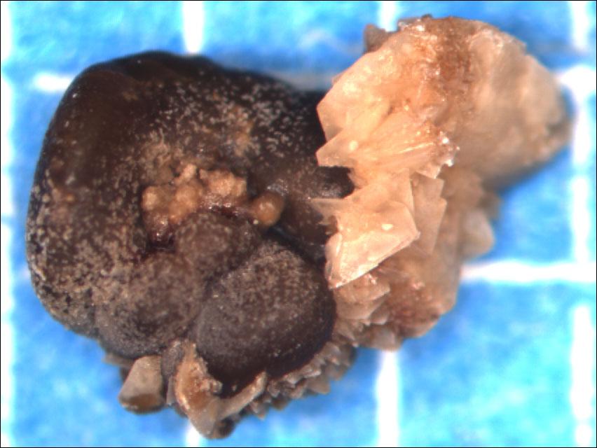 Как вывести оксалатные камни в почках в домашних условиях