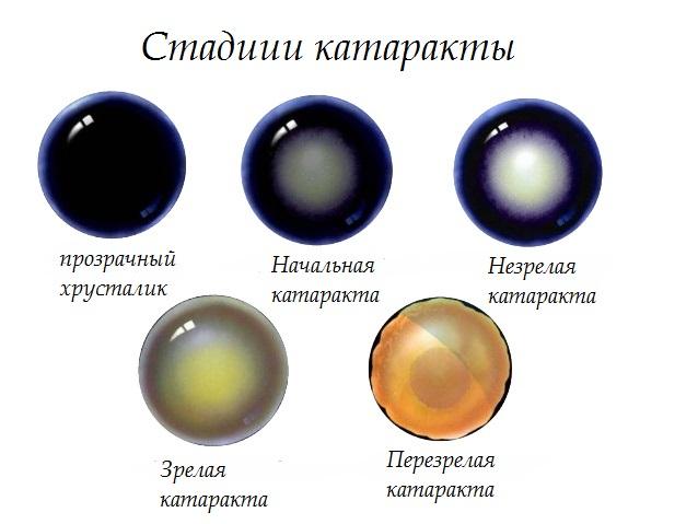 Стадии катаракты (схема)