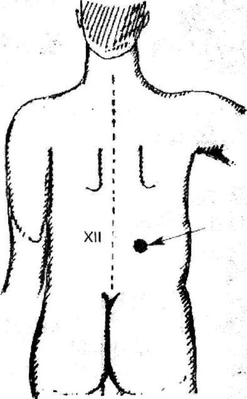 Костовертебральный угол