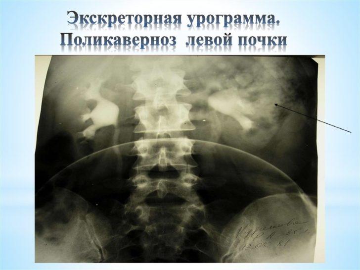 Экскреторная урография (поликаверноз)