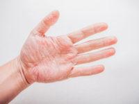 Шелушение кожи ладоней при контактной экземе