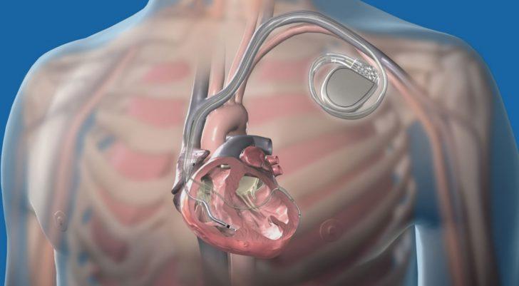 Имплантированный кардиостимулятор (схема)