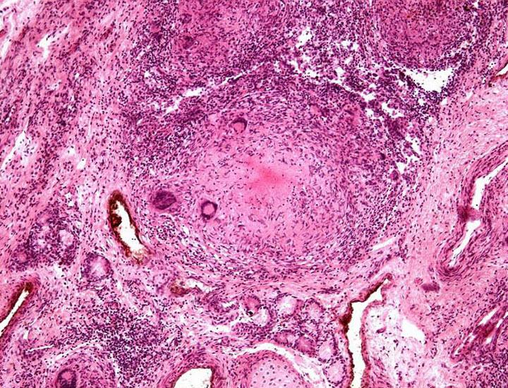 Интерстициальный нефрит (картина под микроскопом)