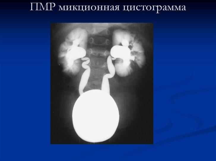 Микционная цистограмма при гидронефрозе